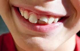 broken tooth, dental problems